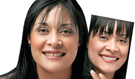 specilized teeth treatments